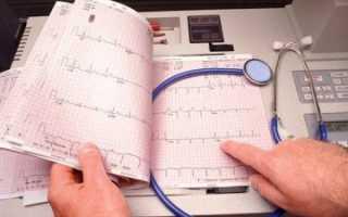 Ишемическая болезнь сердца лечение народными методами