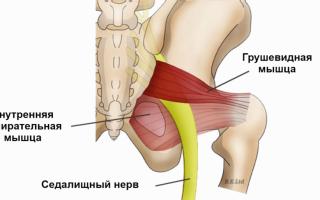 Грушевидная мышца защемление лечение народными методами