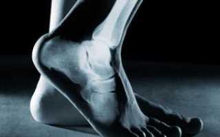 Болезни стопы ног симптомы и лечение