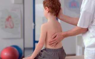 Нарушение осанки у детей лечение