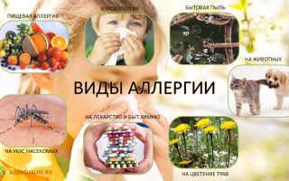 Как начинается аллергия у детей