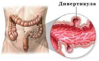 Какие антибиотики принимать при дивертикулите сигмовидной кишки