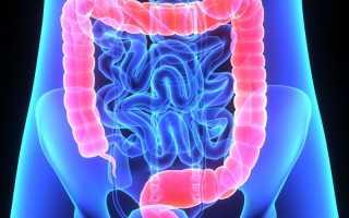 Лечение воспаления кишечника в домашних условиях