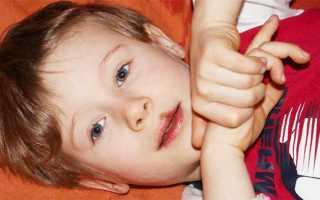 Герпес на губах причины возникновения у детей