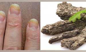Кора дуба от грибка на ногах