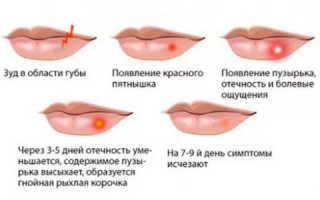 У ребенка герпес на губе чем лечить