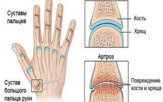Артроз большого пальца руки лечение народными средствами