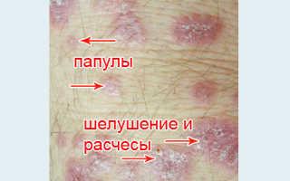 Красный плоский лишай у человека симптомы лечение