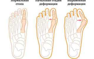 Народные средства лечение косточек большого пальца