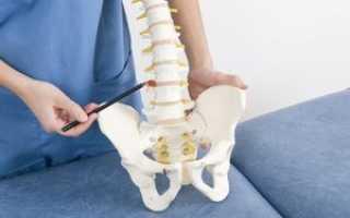 Лечение остеохондроза народными методами поясничного отдела