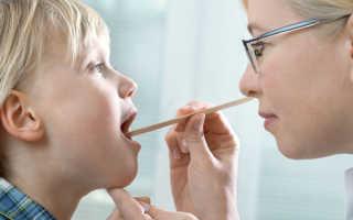 Аллергический ларингит у детей симптомы и лечение