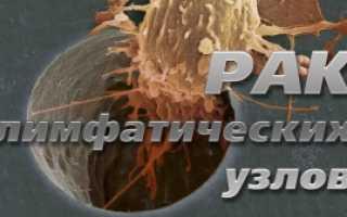 Лечение рака лимфоузлов на шее народными средствами