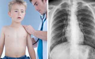 Бронхит годовалого ребенка симптомы