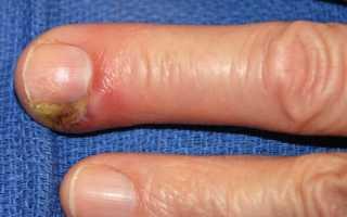 Какие антибиотики пальца ноги