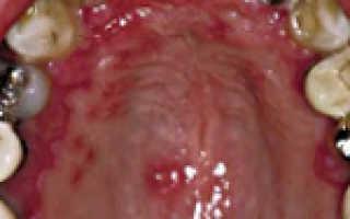 Аллергия слизистой рта лечение