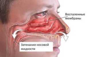 Каким антибиотиком лечат синусит
