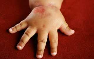 Аллергический дерматит лечение народными средствами у детей