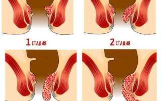 Геморрой у беременных лечение в домашних условиях
