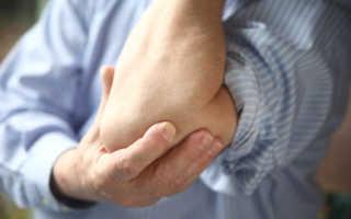 Боли в локтях причины и лечение