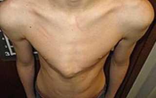 Килевидная грудная клетка лечение домашних условиях