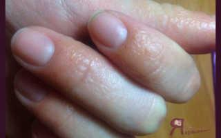 Аллергия после гель лака лечение