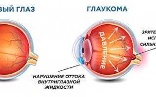 Глаукома причины симптомы лечение и профилактика операция