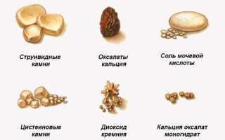 Коралловидный камень в почке лечение народными методами