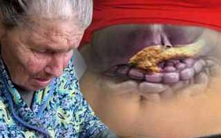 Хронический панкреатит лечение народными средствами отзывы