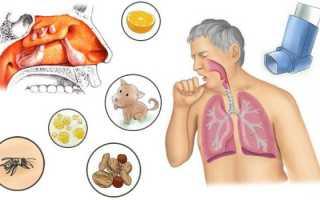 Гайморит на фоне аллергии лечение