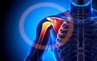 Плечевой остеохондроз лечение в домашних условиях