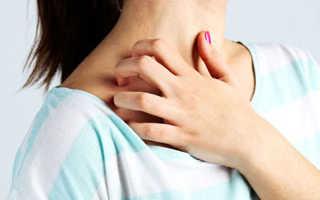 Зуд при аллергии лечение
