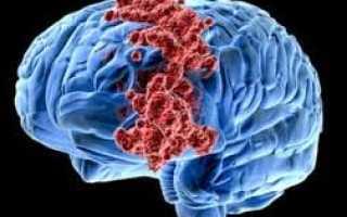 Рак головного мозга народные методы лечения