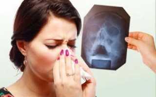 Хронический гайморит лечение в домашних условиях