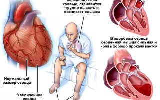 Пониженное верхнее давление причины и лечение